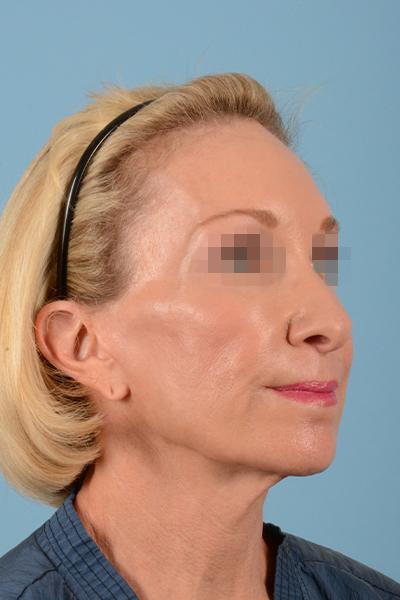 Facelift Gallery - Patient 10380596 - Image 5