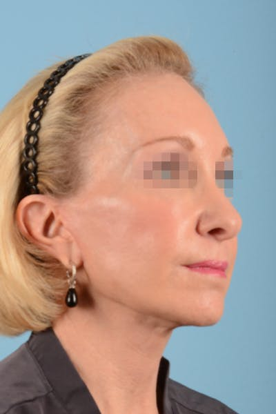 Facelift Gallery - Patient 10380596 - Image 6