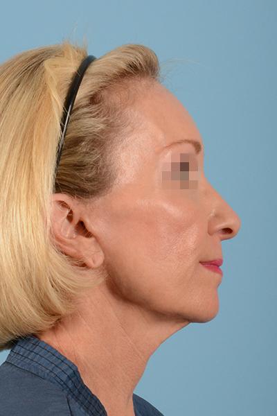 Facelift Gallery - Patient 10380596 - Image 7