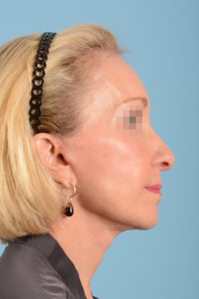 Facelift Gallery - Patient 10380596 - Image 8