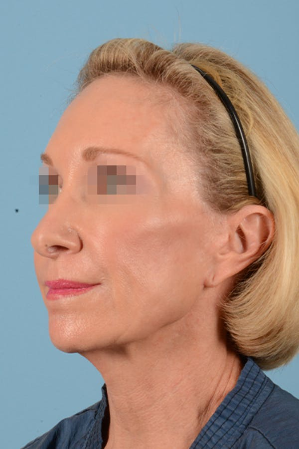 Facelift Gallery - Patient 10380596 - Image 9
