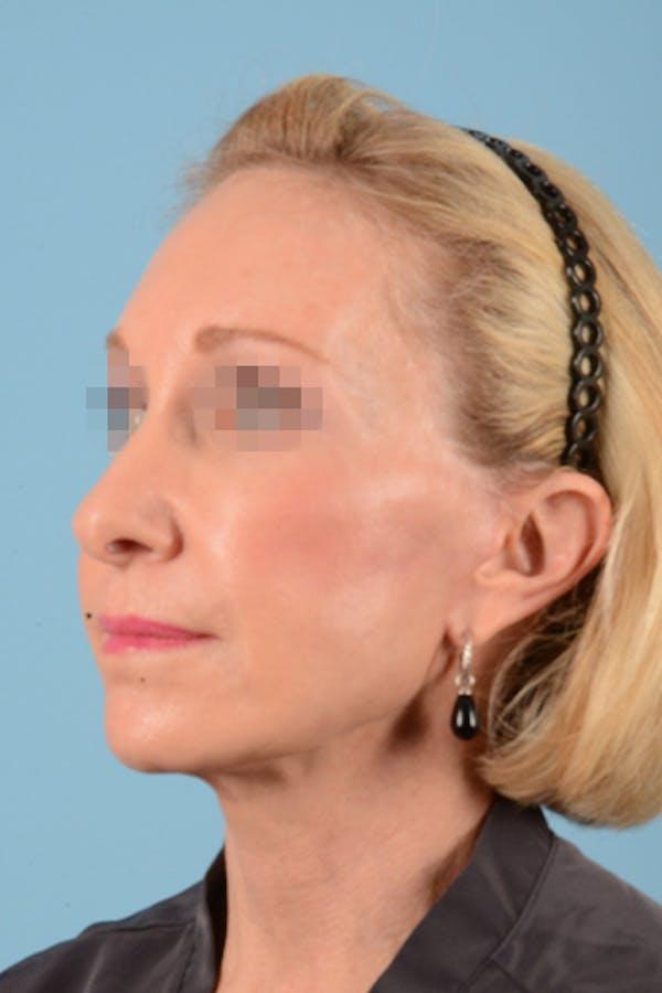 Facelift Gallery - Patient 10380596 - Image 10