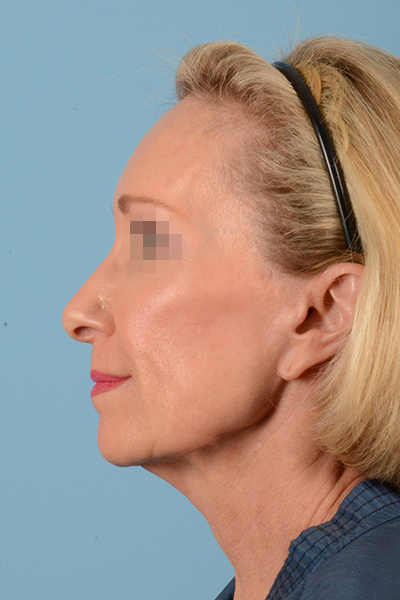 Facelift Gallery - Patient 10380596 - Image 11