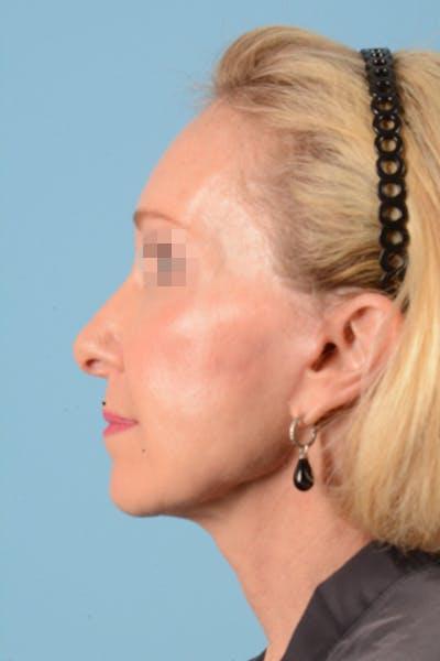 Facelift Gallery - Patient 10380596 - Image 12