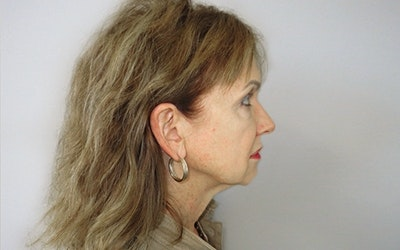Neck Lift Gallery - Patient 10380600 - Image 1