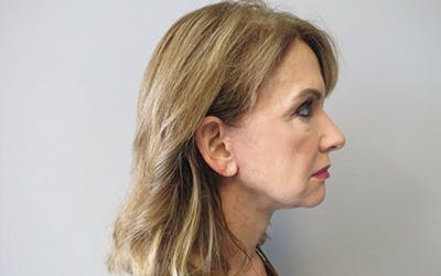 Neck Lift Gallery - Patient 10380600 - Image 2