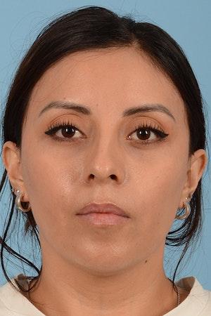 Non-Surgical Rhinoplasty