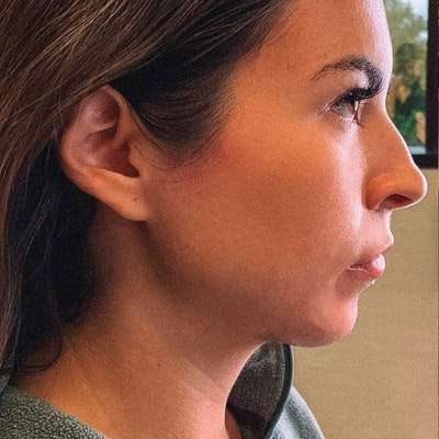 Chin Gallery - Patient 10380724 - Image 1