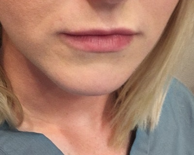 Lip Injection Gallery - Patient 10380728 - Image 1