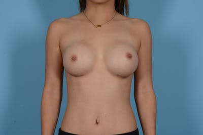 Breast Augmentation Gallery - Patient 10380356 - Image 1
