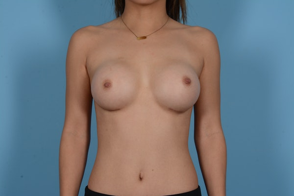 Breast Augmentation Gallery - Patient 10380356 - Image 2