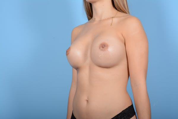 Breast Augmentation Gallery - Patient 10380359 - Image 10