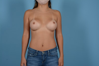 Breast Augmentation Gallery - Patient 11203277 - Image 2
