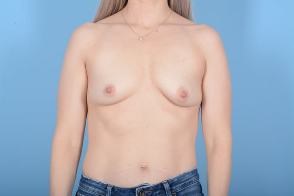Breast Augmentation Gallery - Patient 11203278 - Image 1