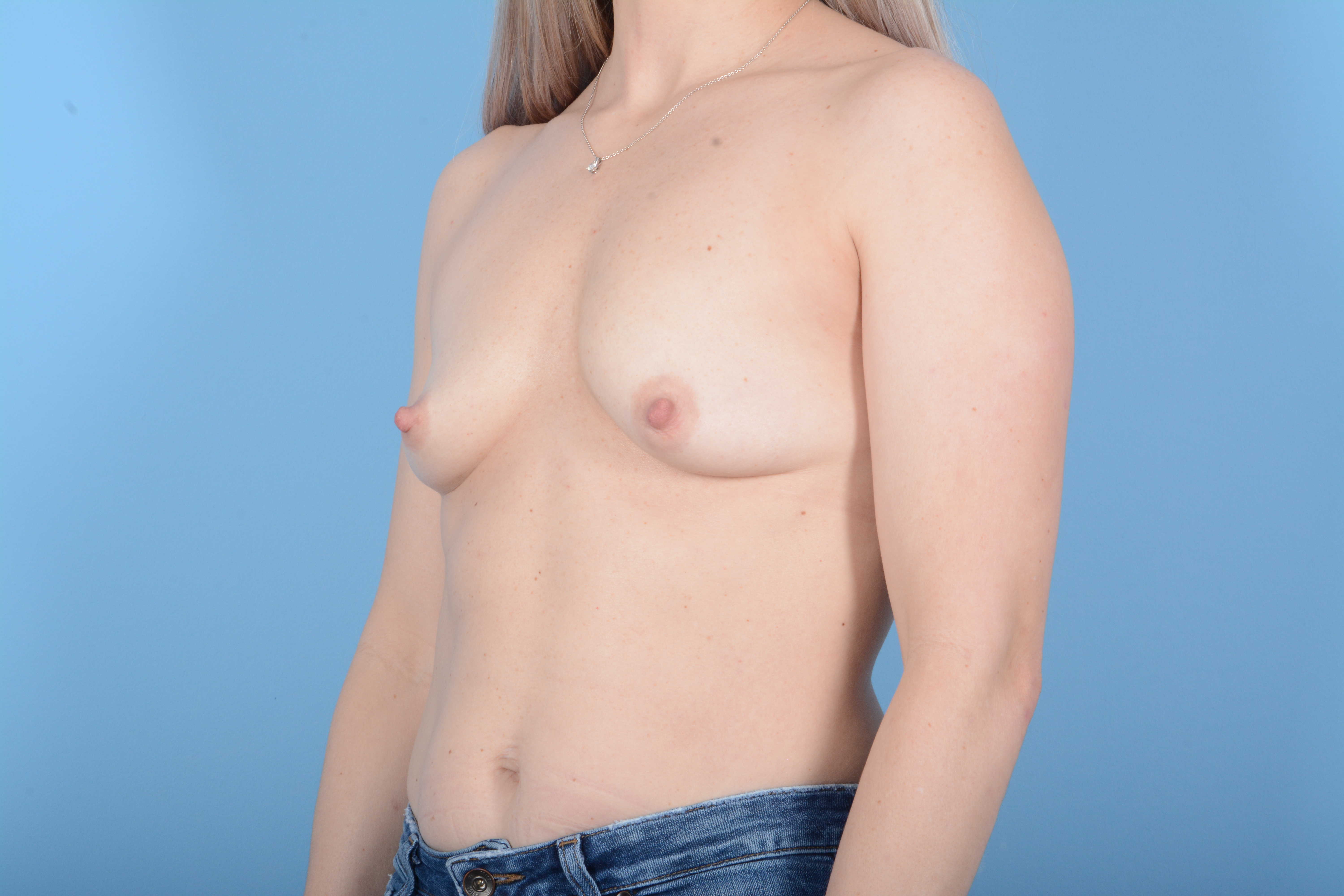 Breast Augmentation Gallery - Patient 11203278 - Image 3