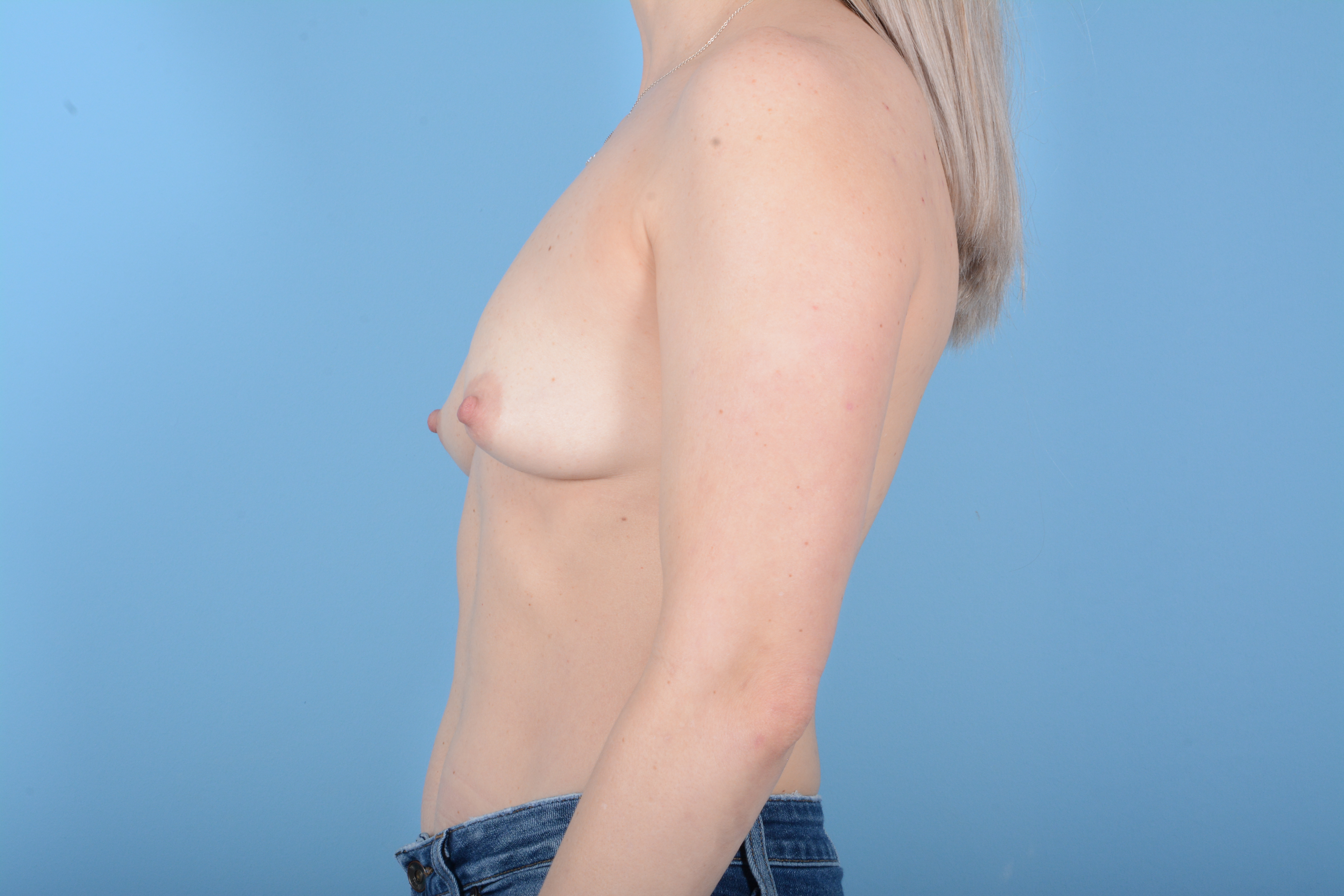 Breast Augmentation Gallery - Patient 11203278 - Image 5