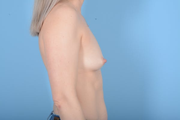 Breast Augmentation Gallery - Patient 11203278 - Image 7
