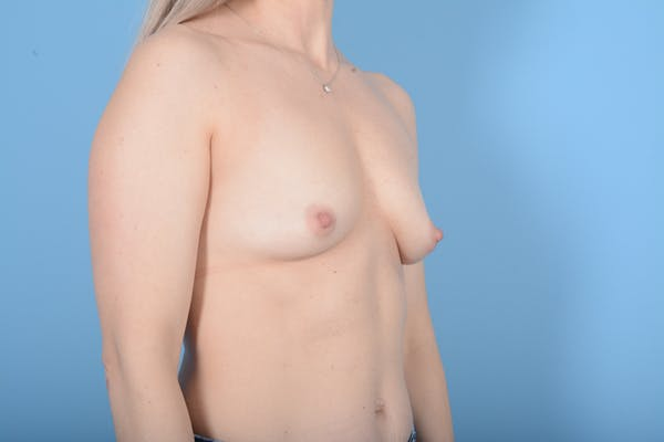Breast Augmentation Gallery - Patient 11203278 - Image 9