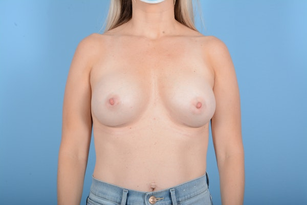 Breast Augmentation Gallery - Patient 11203278 - Image 2