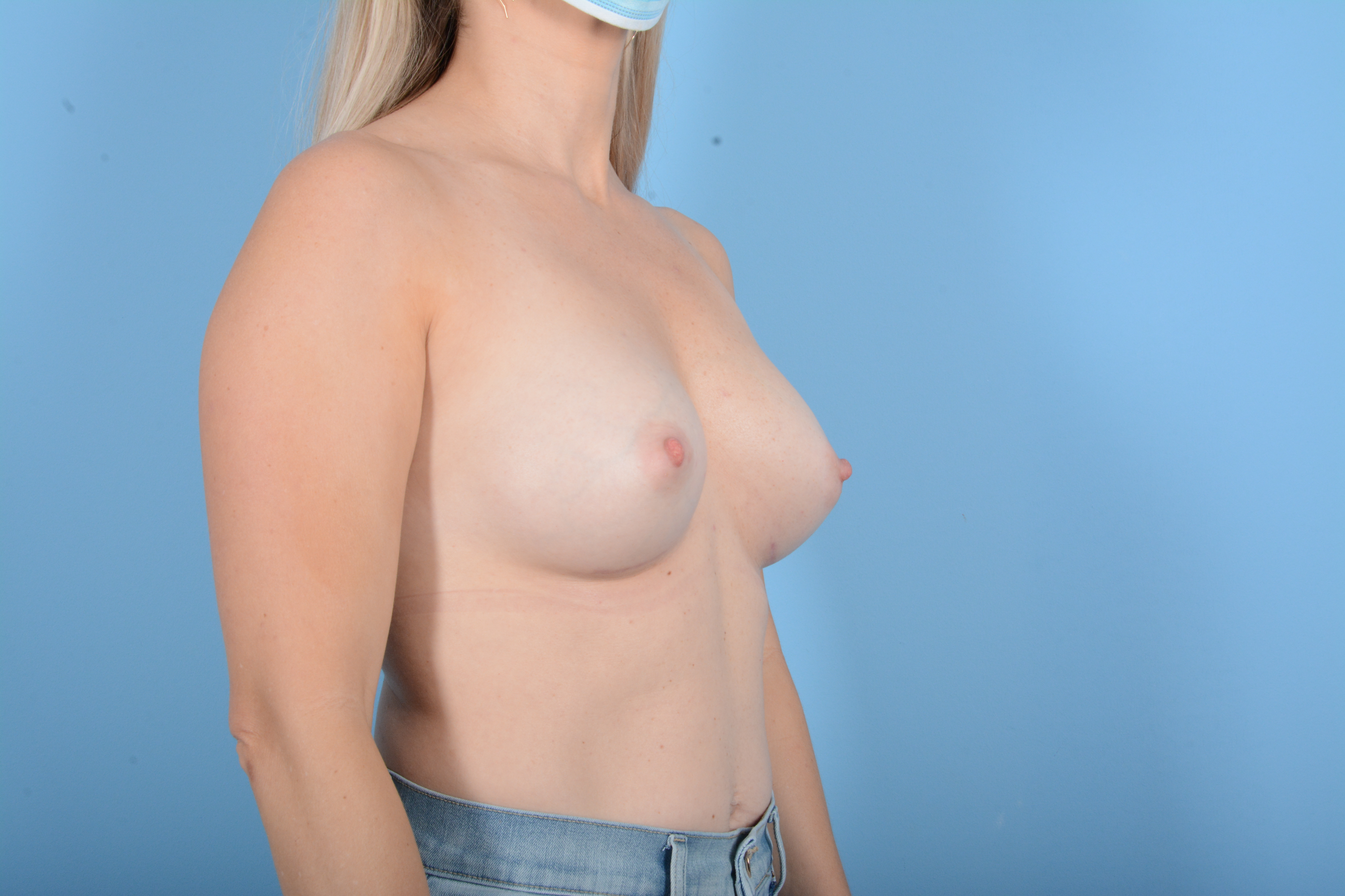 Breast Augmentation Gallery - Patient 11203278 - Image 10