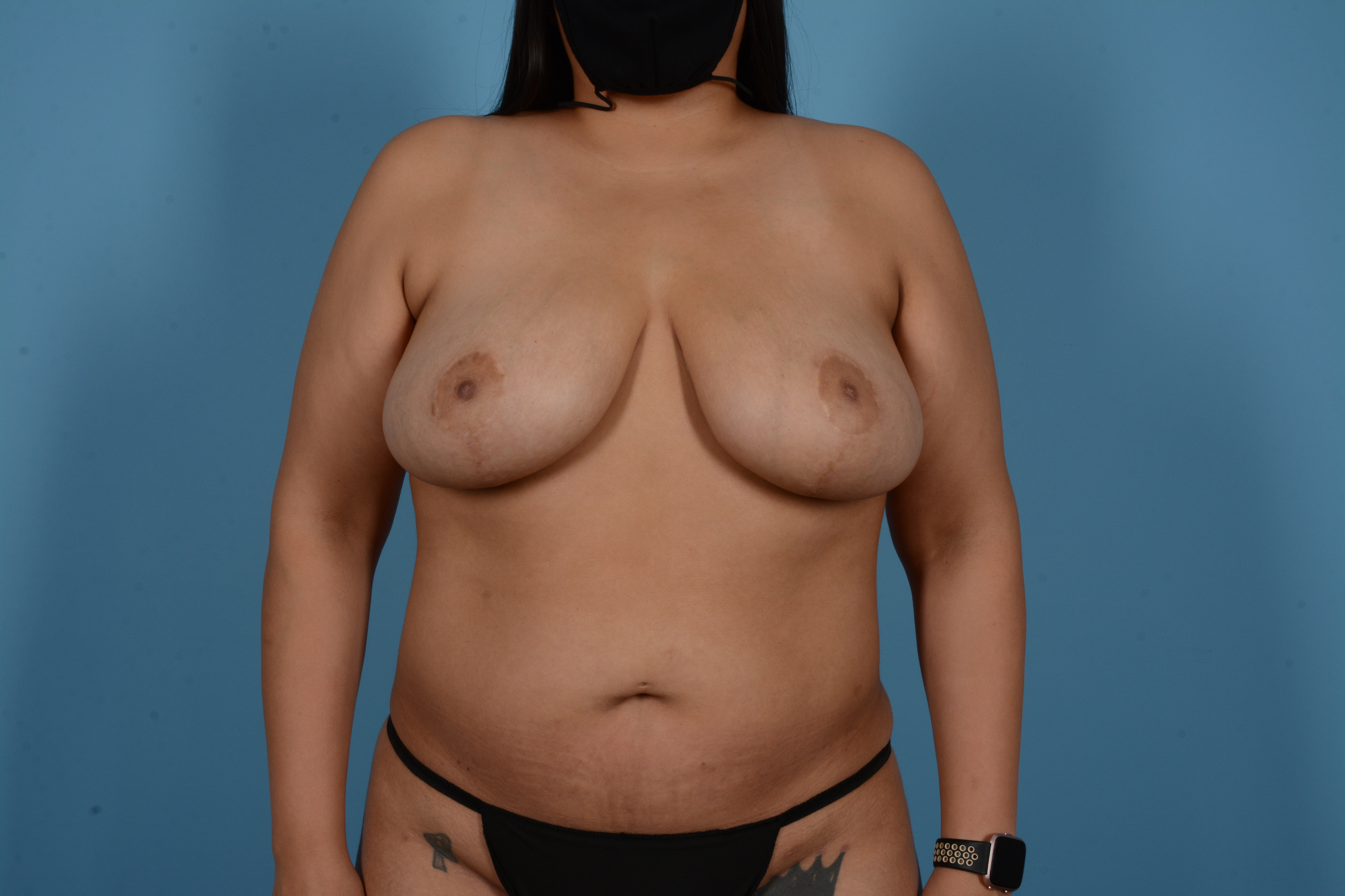 Breast Lift Gallery - Patient 11203281 - Image 2