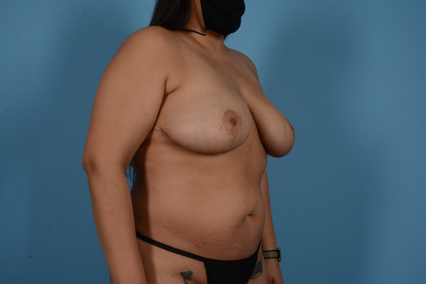 Breast Lift Gallery - Patient 11203281 - Image 4