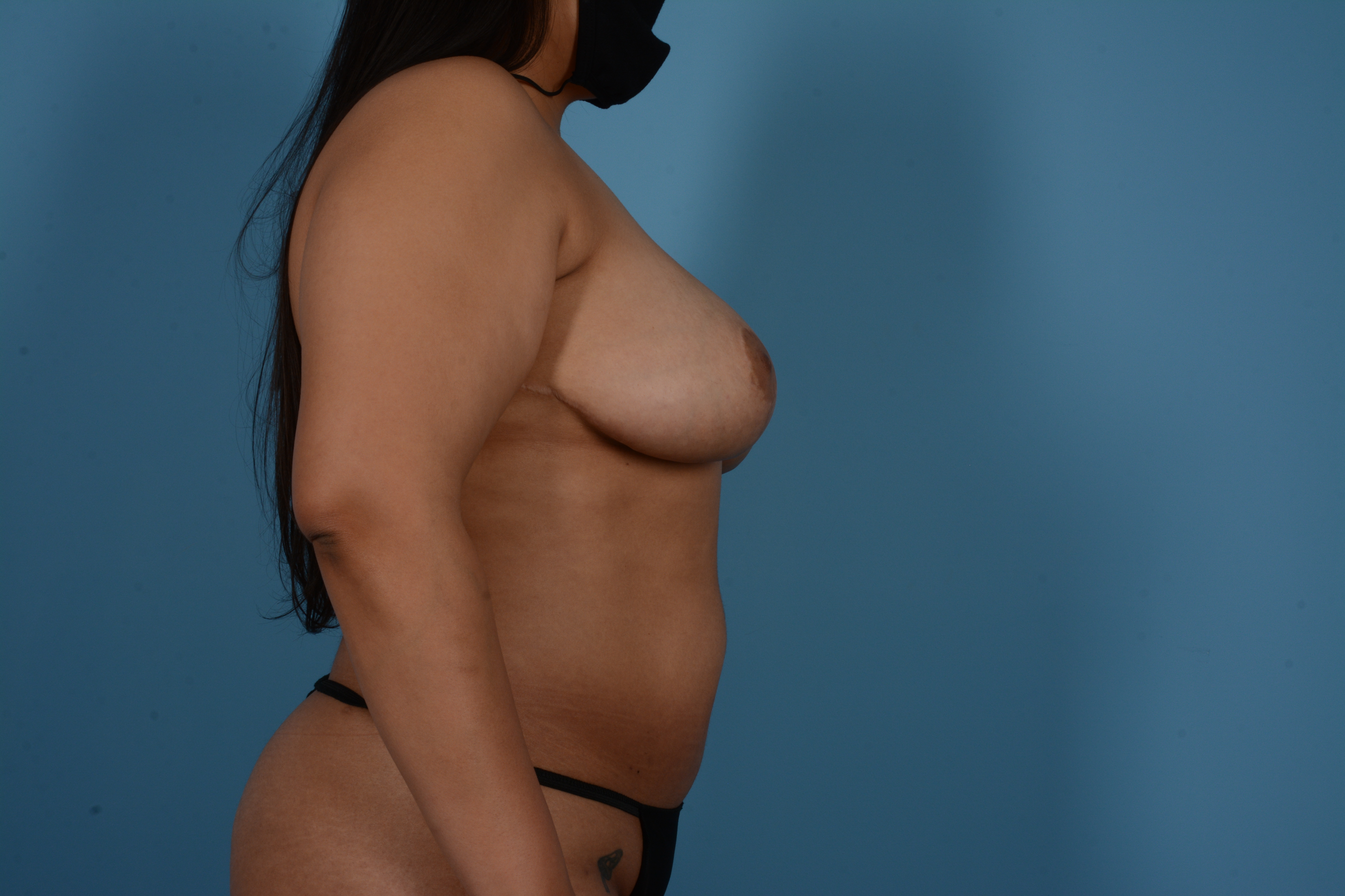 Breast Lift Gallery - Patient 11203281 - Image 6