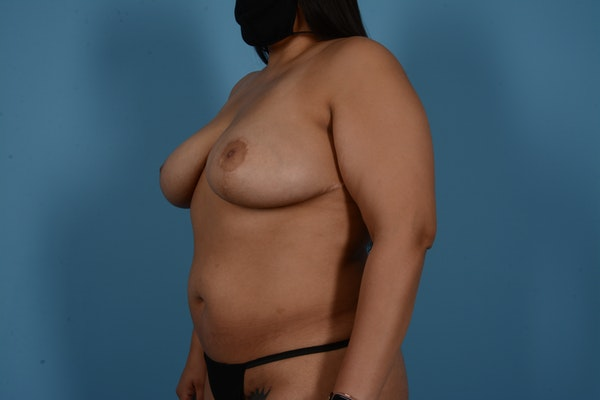 Breast Lift Gallery - Patient 11203281 - Image 8