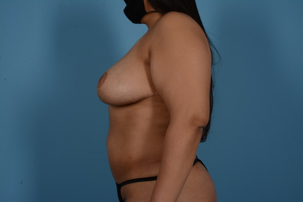 Breast Lift Gallery - Patient 11203281 - Image 10