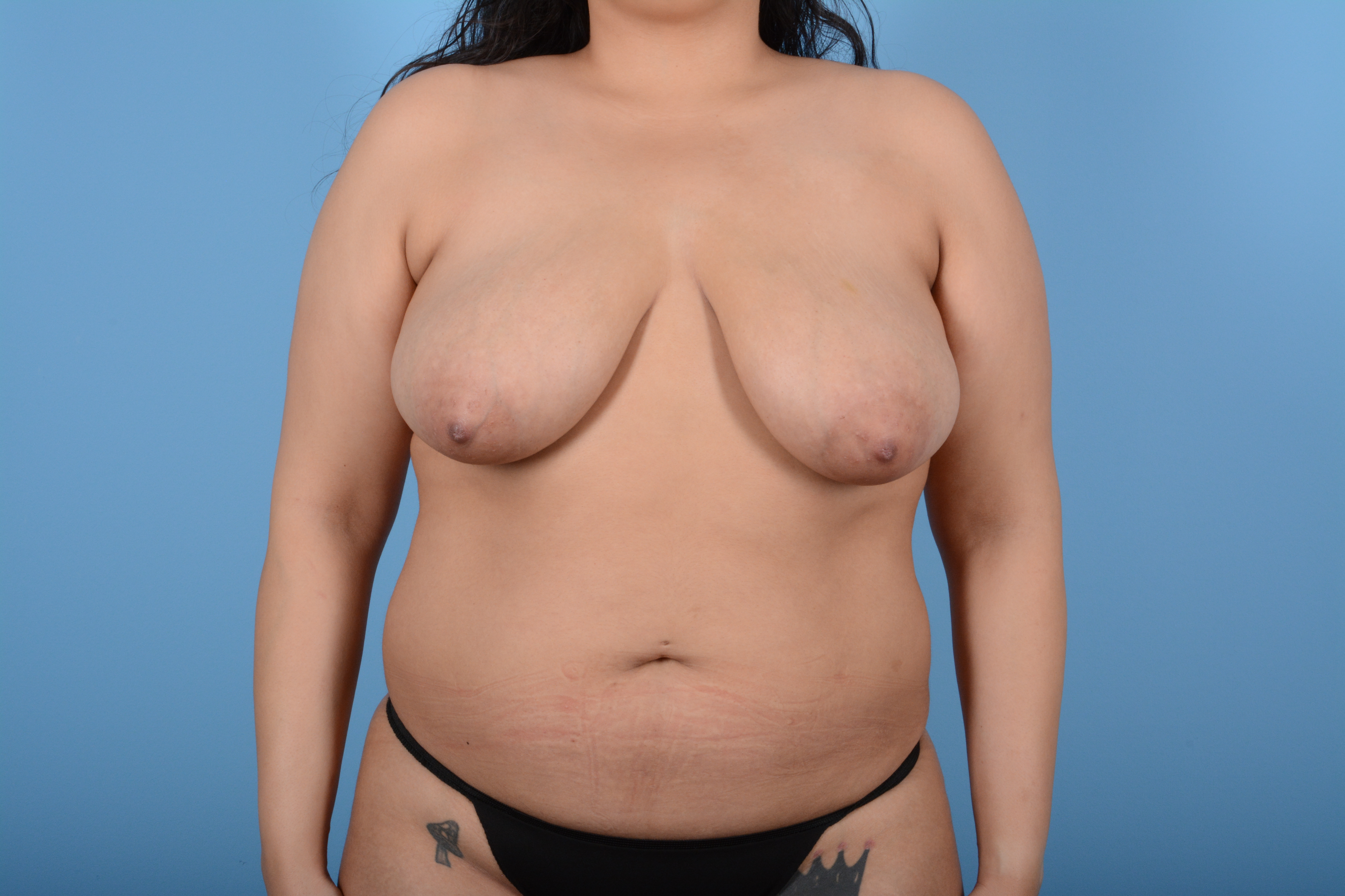 Breast Lift Gallery - Patient 11203281 - Image 1
