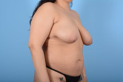 Breast Lift Gallery - Patient 11203281 - Image 3