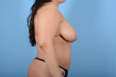 Breast Lift Gallery - Patient 11203281 - Image 5