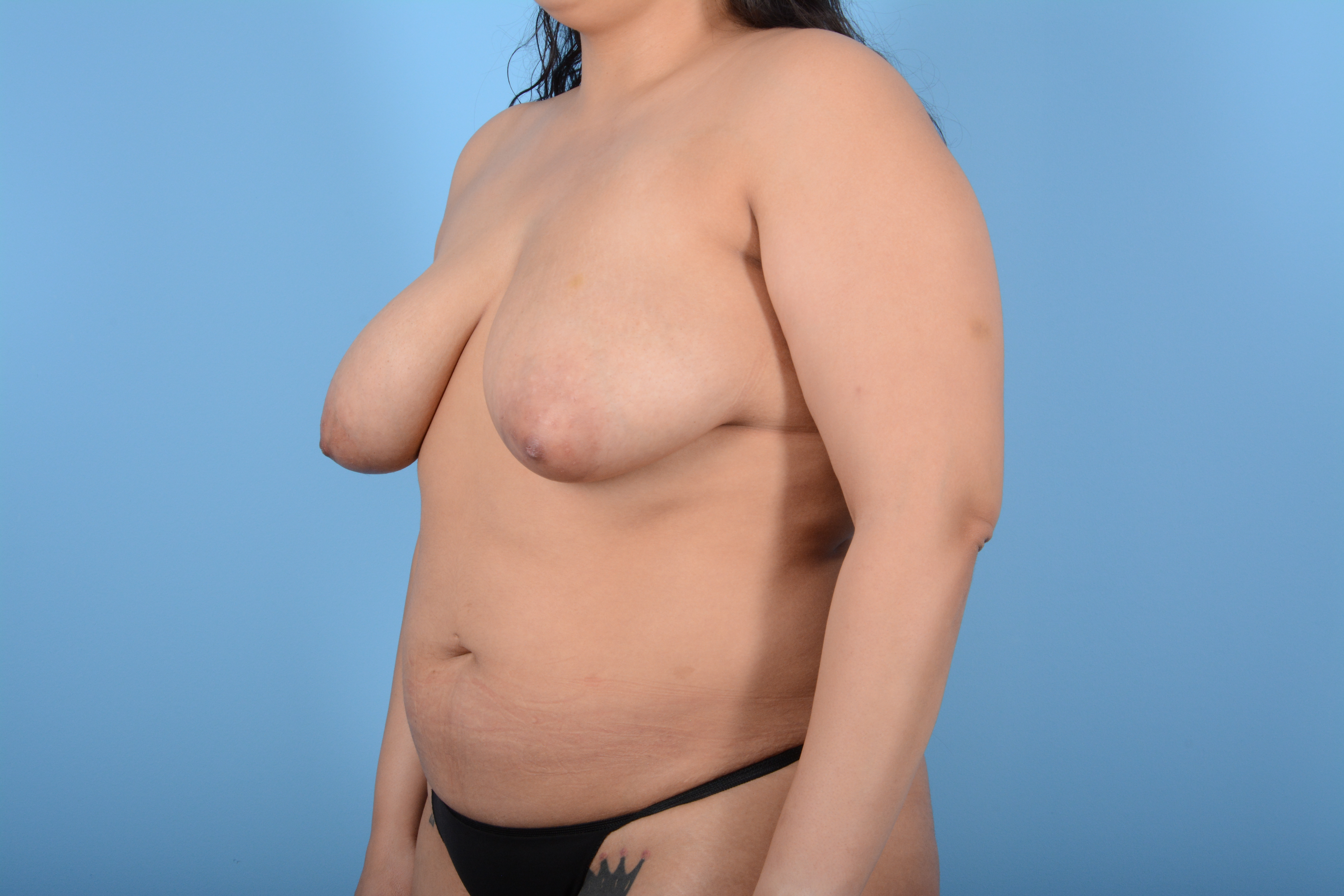 Breast Lift Gallery - Patient 11203281 - Image 7