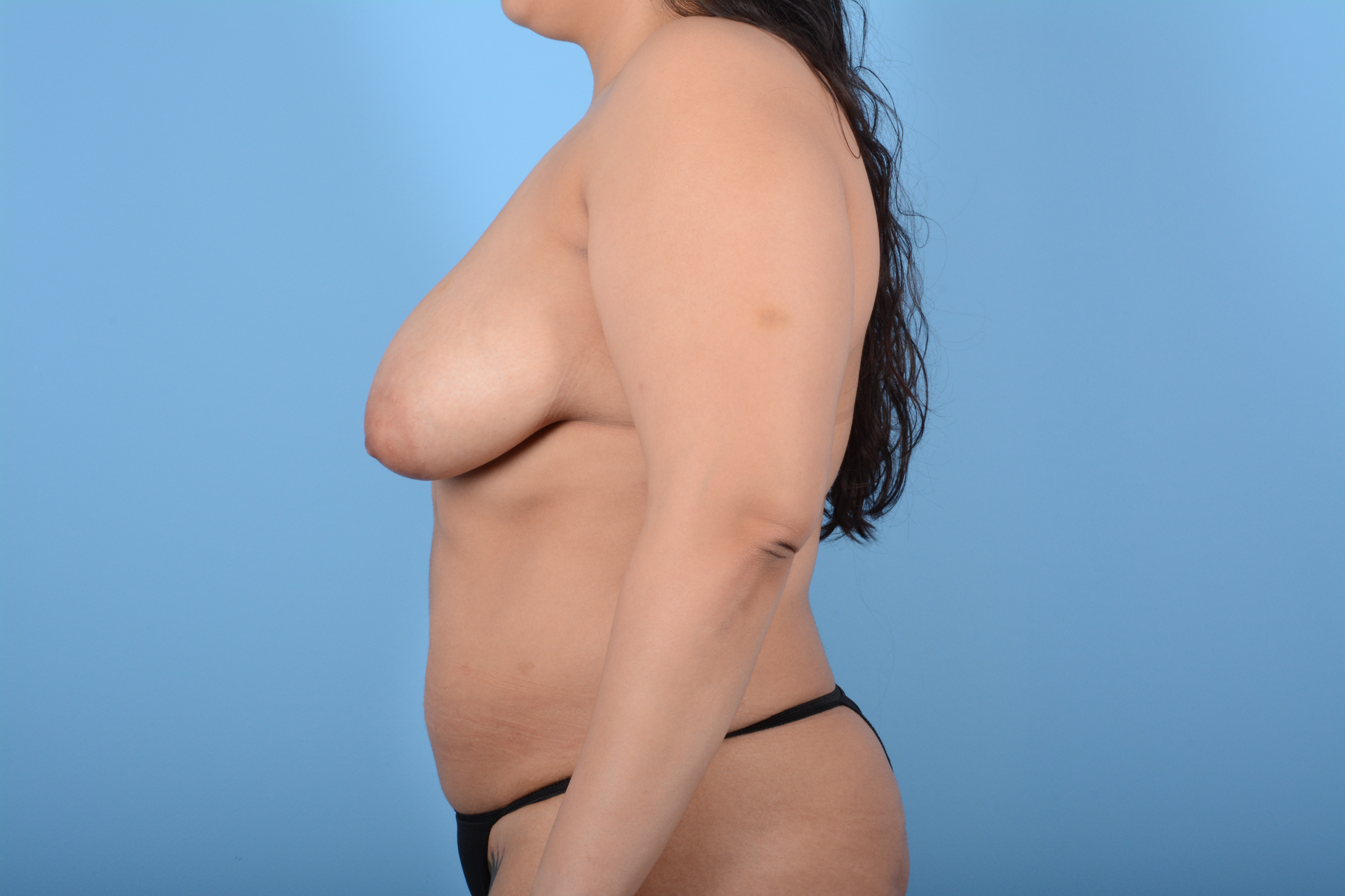 Breast Lift Gallery - Patient 11203281 - Image 9