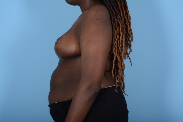 Breast Reduction Gallery - Patient 11203285 - Image 6