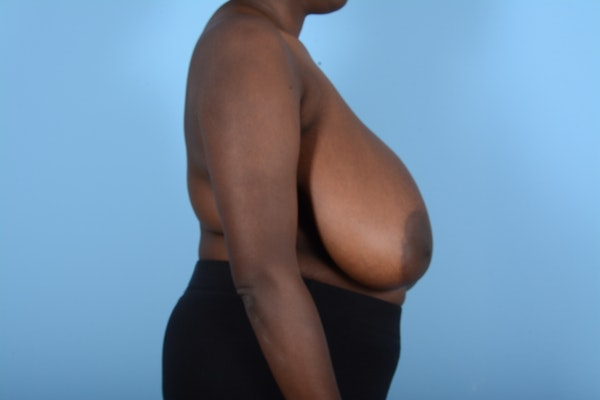 Breast Reduction Gallery - Patient 11203285 - Image 7