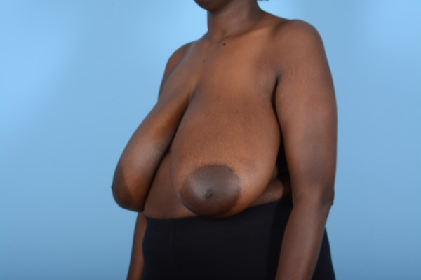 Breast Reduction Gallery - Patient 11203285 - Image 3