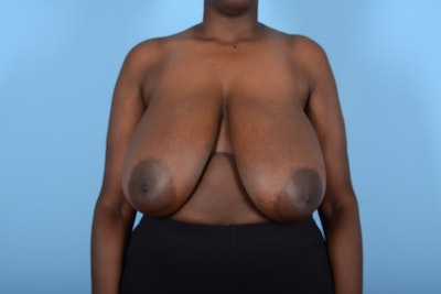 Breast Reduction Gallery - Patient 11203285 - Image 1