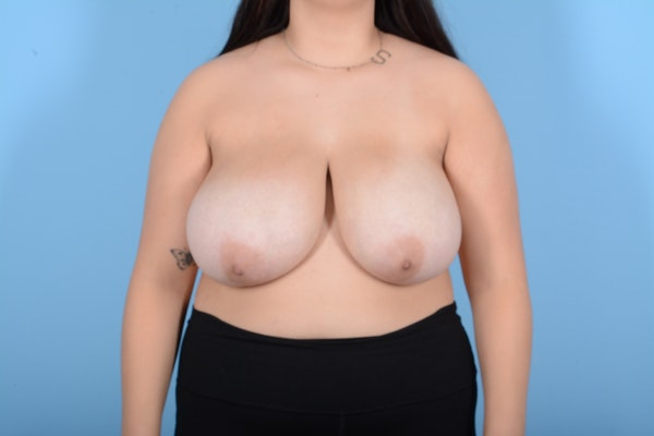 Breast Reduction Gallery - Patient 11203286 - Image 1
