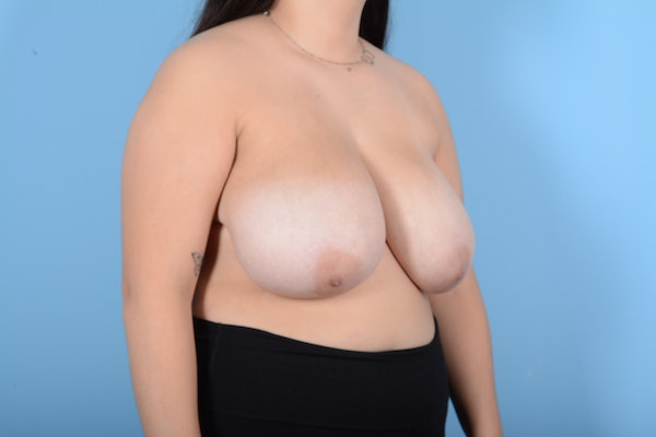 Breast Reduction Gallery - Patient 11203286 - Image 3