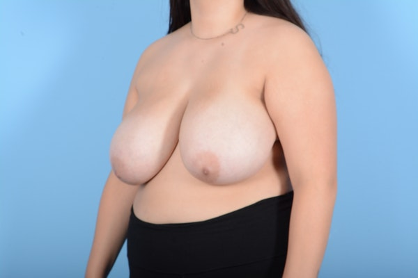 Breast Reduction Gallery - Patient 11203286 - Image 7