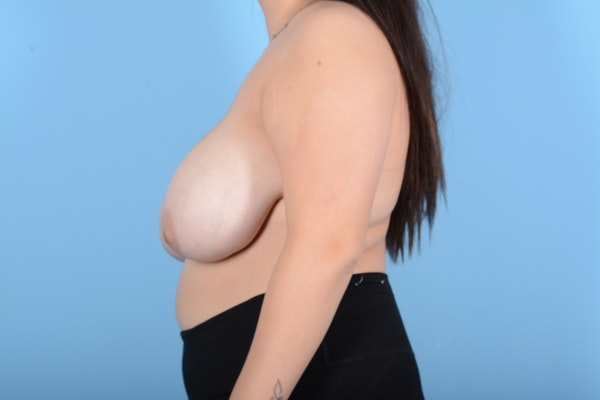Breast Reduction Gallery - Patient 11203286 - Image 9