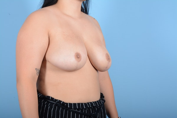 Breast Reduction Gallery - Patient 11203286 - Image 4