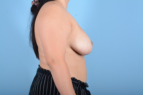 Breast Reduction Gallery - Patient 11203286 - Image 6