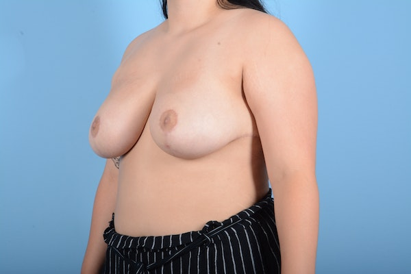 Breast Reduction Gallery - Patient 11203286 - Image 8