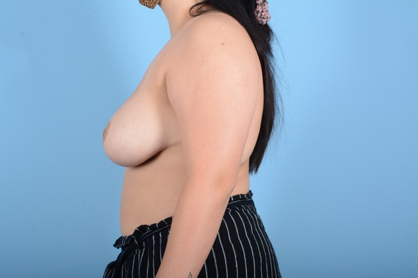 Breast Reduction Gallery - Patient 11203286 - Image 10
