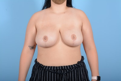 Breast Reduction Gallery - Patient 11203286 - Image 2