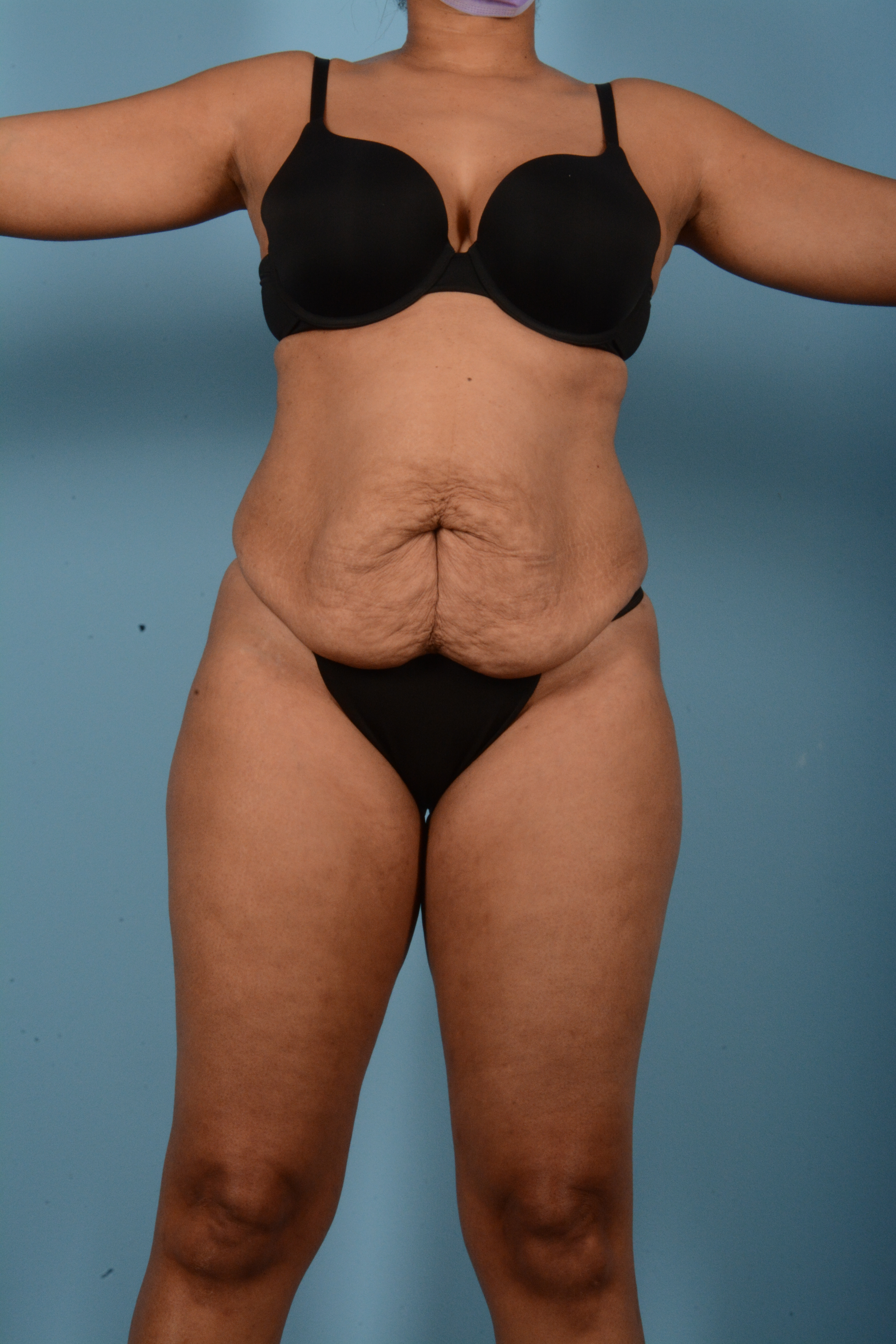 Tummy Tuck Gallery - Patient 11203331 - Image 1