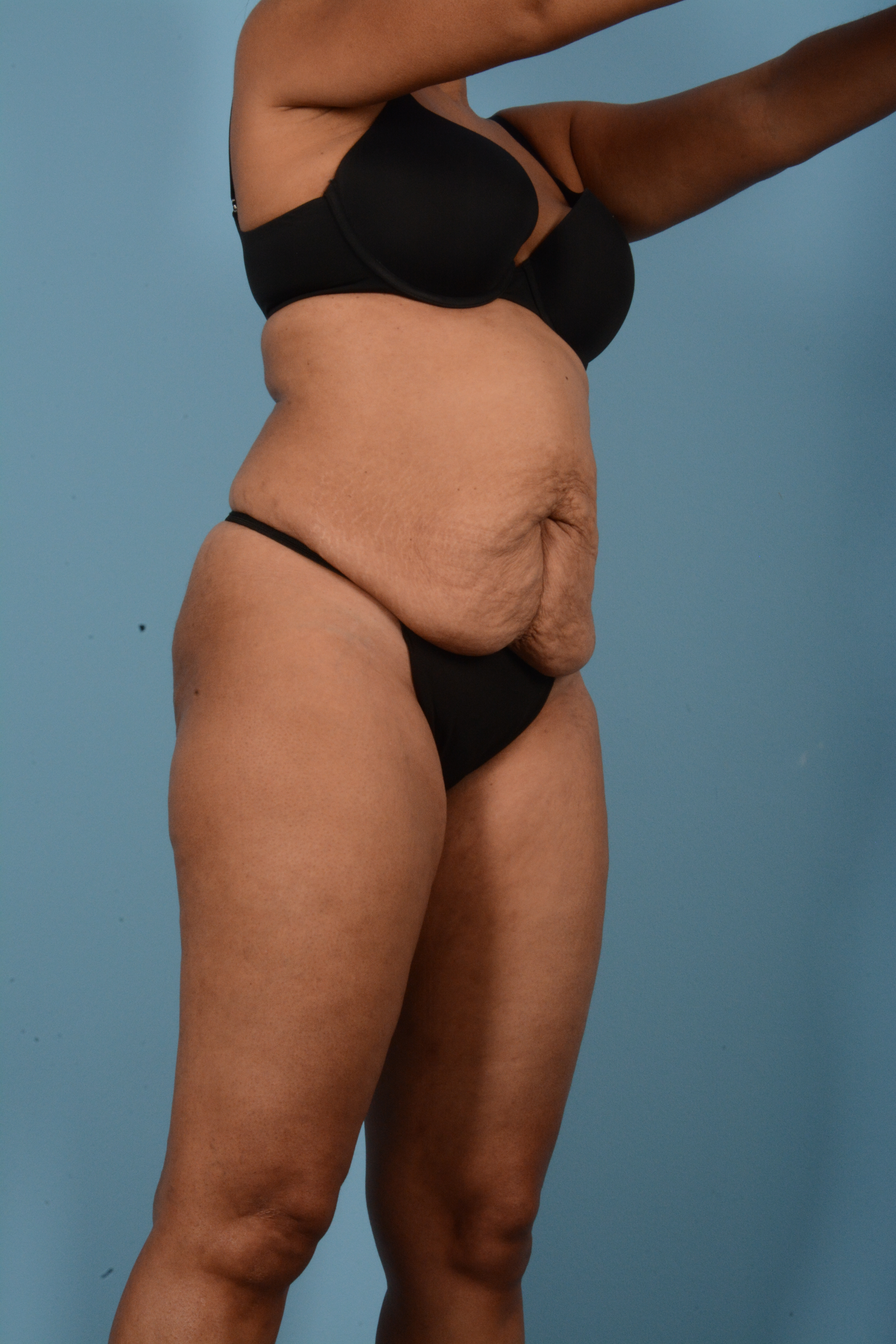Tummy Tuck Gallery - Patient 11203331 - Image 3