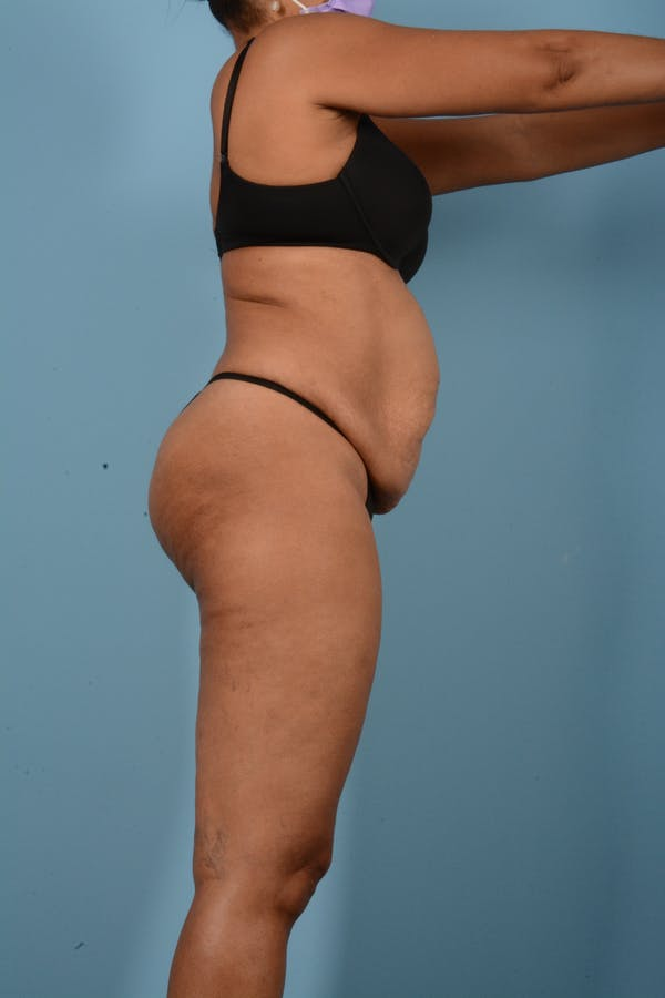 Tummy Tuck Gallery - Patient 11203331 - Image 5